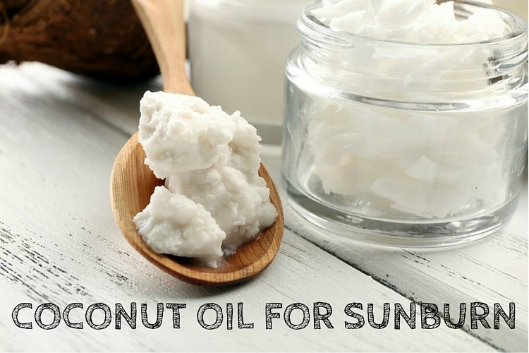How To Use Coconut Oil For Sunburn (12 Methods)