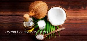 How To Remove Acne Scars With Coconut Oil