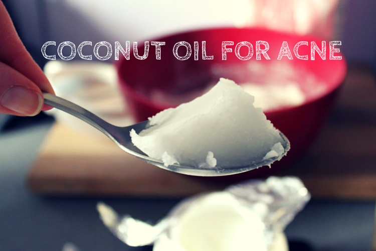 How To Cure Acne Quickly With Coconut Oil?